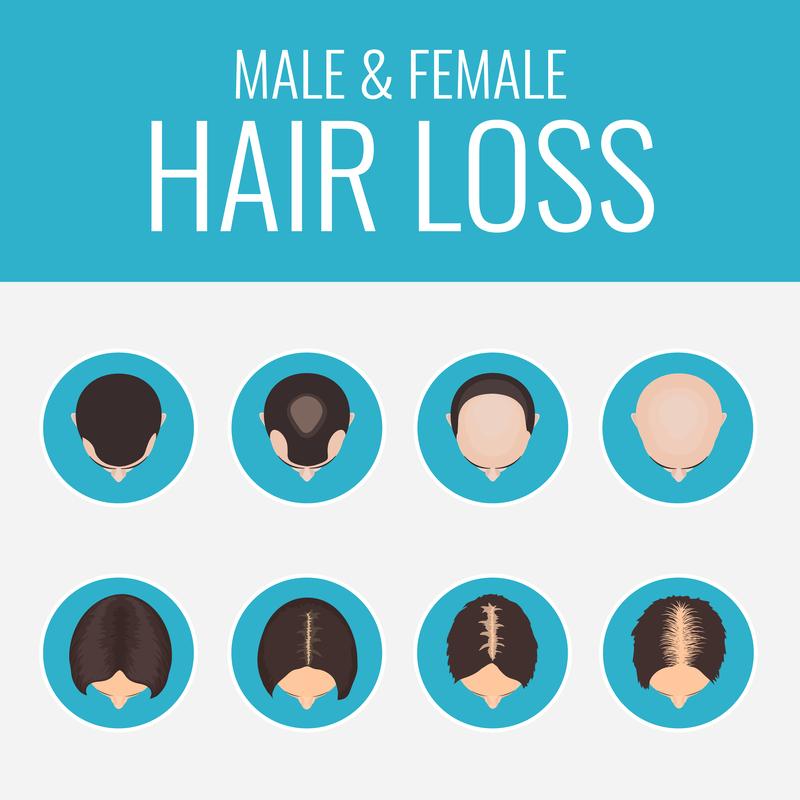 經血爆多變禿頭?醫:多補充「這種」營養素助生髮_圖3